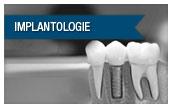 Zahnimplantate Oldenburg